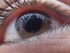 Rumunai ieško gamintojų inovatyviam glaukomos medicinos prietaisui