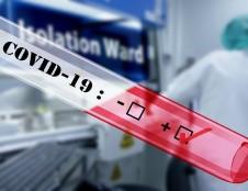 Konsorciumas ieško partnerių, kurie turi laboratoriją ir atlieka testus COVID-19 nustatyti bei norėtų išbandyti naują testavimo būdą